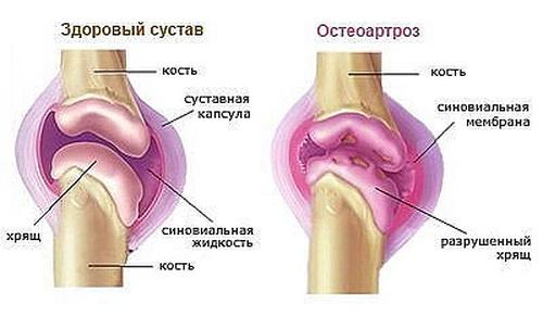 Я образный сколиоз грудного отдела позвоночника